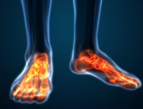 FREE WEBINAR on Diabetic Neuropathy